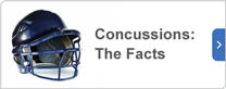 Concussions: the facts