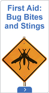 First aid: Bug bites and stings