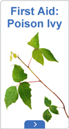 First aid: poison ivy