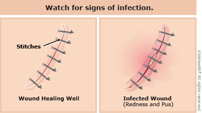Watch out for signs, like redness and swelling, that a cut might be infected, as described in the article