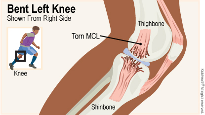 Diagram shows bent left knee shown from right side and labels torn MCL, thighbone, and shinbone
