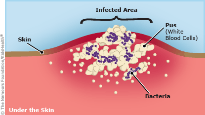 Illustration shows how bacteria under the skin can cause an infection