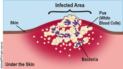 Diagram showing bacteria and pus under the skin, forming an abscess.