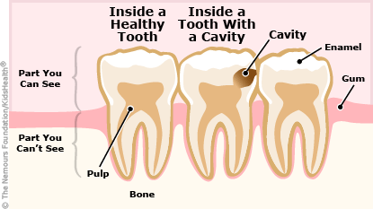 Inside a healthy tooth and inside of one with a dental cavity