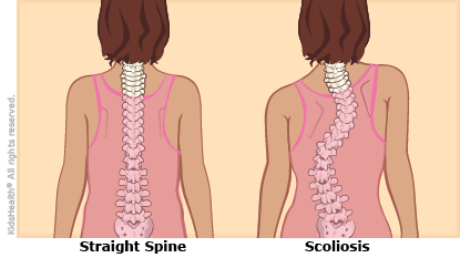 """A comparison of a normal spine, which is straight, and an """"ess"""" shaped curve in a spine with scoliosis."""
