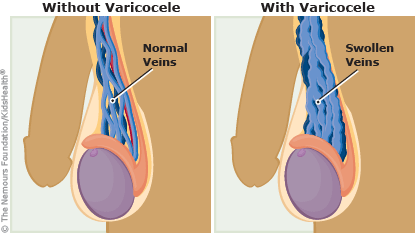 with and without varicocele illustration