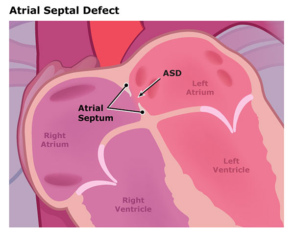 An illustration of atrial septal defect