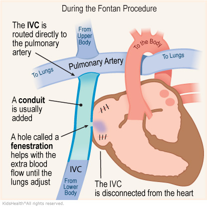 An illustration shows changes to the IVC during the Fontan procedure