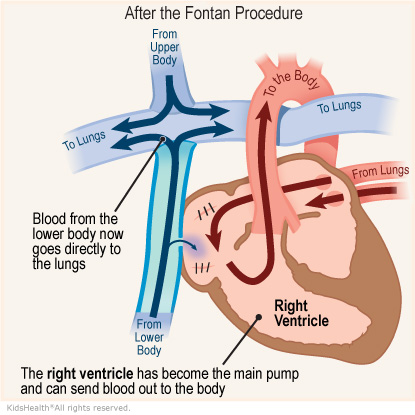 An illustration shows the right ventricle after the Fontan procedure