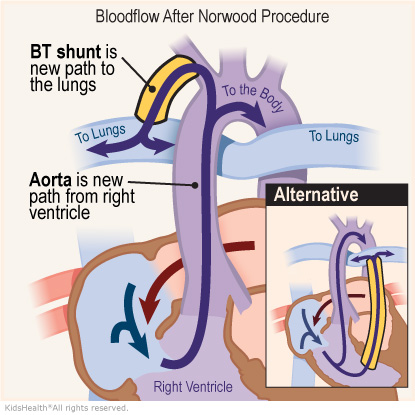An illustration of bloodflow after the Norwood Procedure