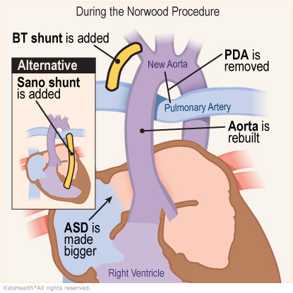 An illustration shows the Norwood Procedure