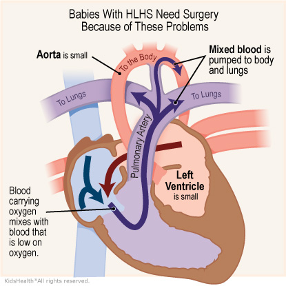 An illustration shows hypoplastic left heart syndrome