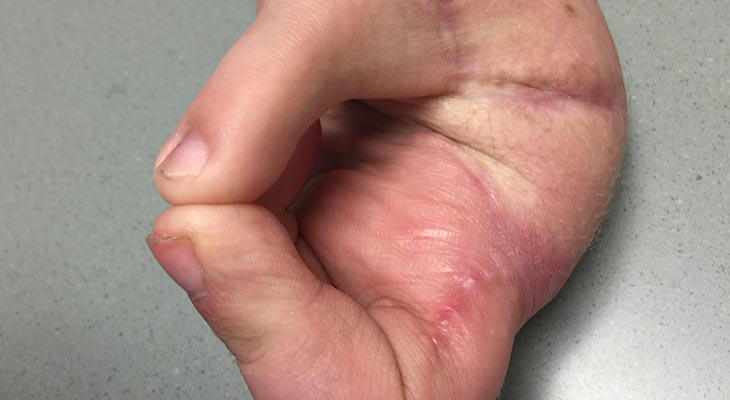 Toe-hand thumb replacement