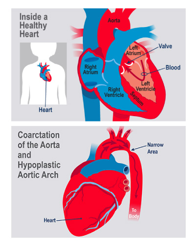 An illustration shows coarctation of aorta in infants