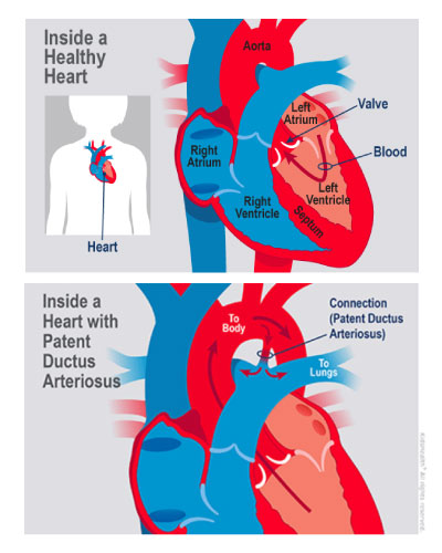 An illustration shows a child's heart with patent ductus arteriosis