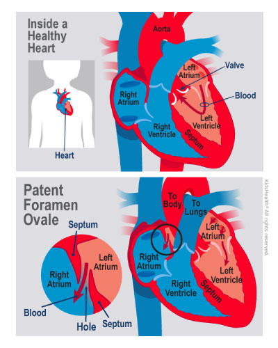 An illustration shows a PFO in a child's heart