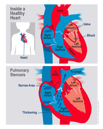 A diagram shows congenital pulmonary valve stenosis in comparison to a healthy child's heart