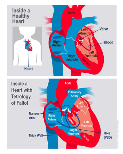 A diagram showing the differences between a healthy heart and one with tetralogy of Fallot.
