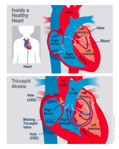 Tricuspid atresia is shown in this illustration