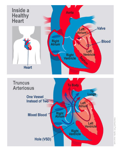 Children with truncus arteriosus are born with one large artery carrying blood to the lungs and body instead of two separate arteries.